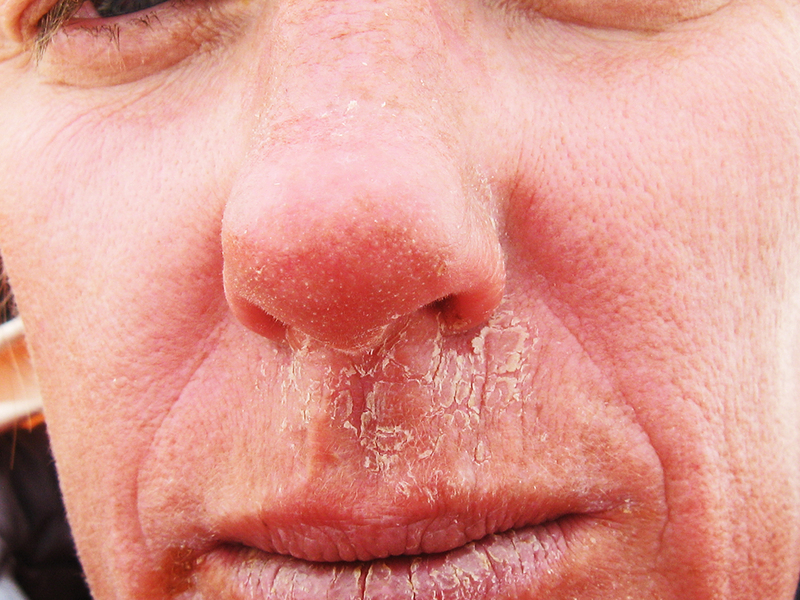 spricka i näsan